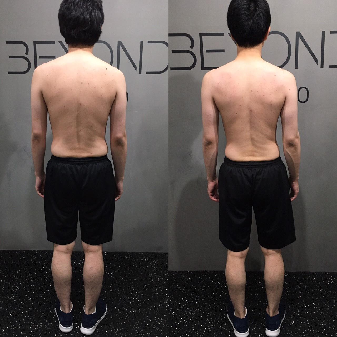 20代、男性 〜痩せながら〜肩こり腰痛改善
